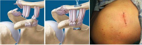 Оперативное лечение разрыва АКС