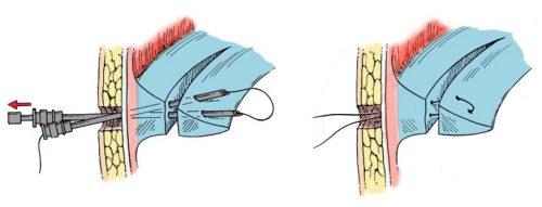 Сшивание мениска