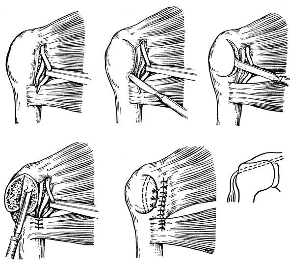 Оперативное лечение вывиха плеча по Краснову
