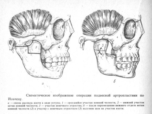 Операция при анкилозе челюсти