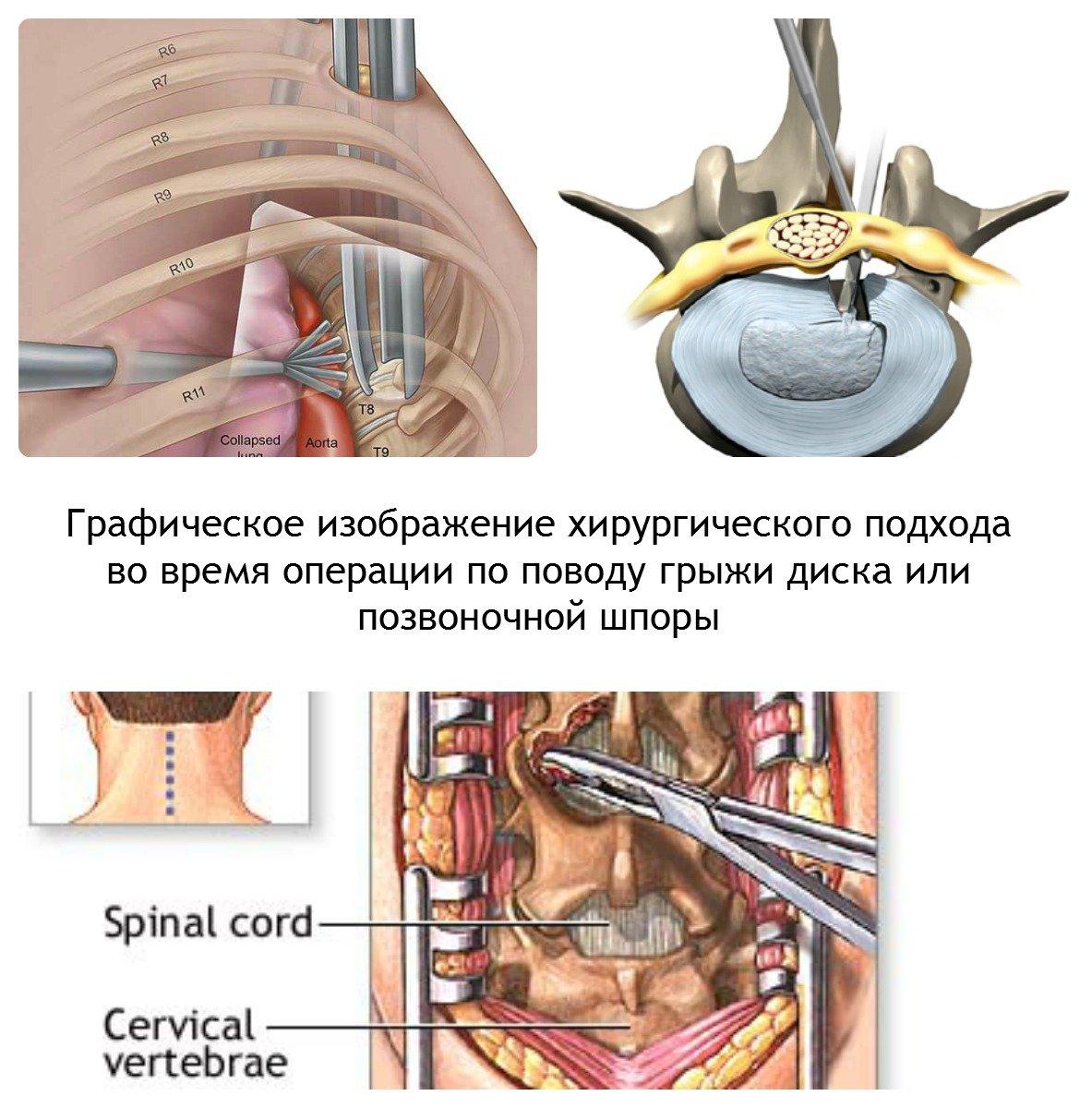 Операция при защемлении шейного нерва