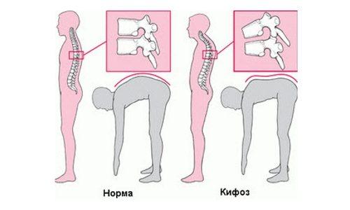 Определение кифоза при наклоне