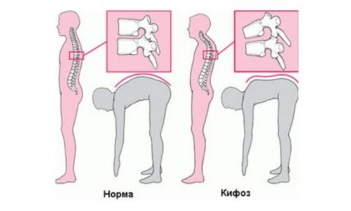 Определение кифоза при наклоне вперед
