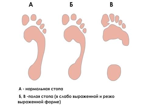 Определение полой стопы по следу