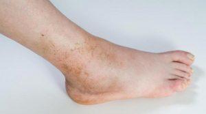 Опухание голеностопного сустава