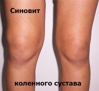 Опухание колена при синовите