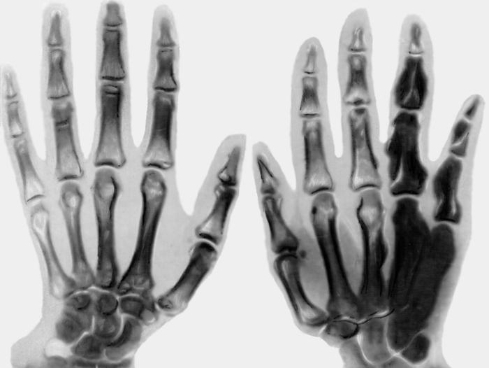 Опухоль костей кисти на рентген снимке