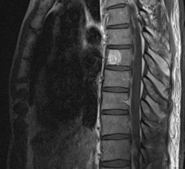 Опухоль позвоночника на снимке