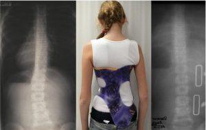 Ношение ортопедического корсета при сколиозе