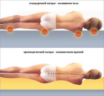 Ортопедический матрас для позвоночника