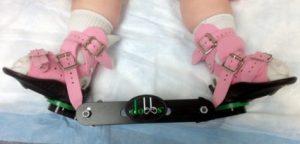 Ортопедия при вальгусной деформации