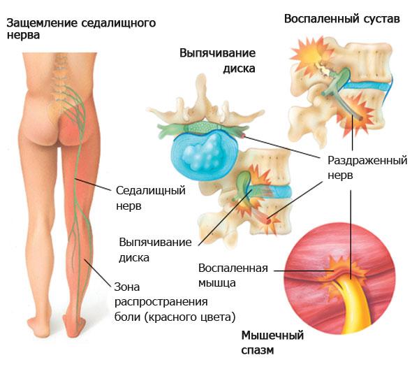 Защемление нерва в поясничном отделе