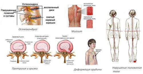 Осложнения кифосколиоза