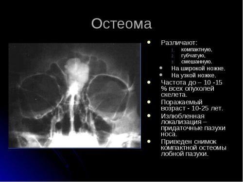 Особенности остеомы лобной пазухи