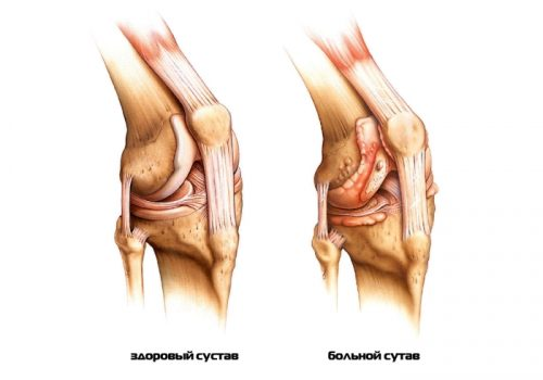 Проблема остеоартрита коленного сустава