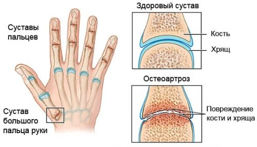Схема остеоартроза пальцев рук