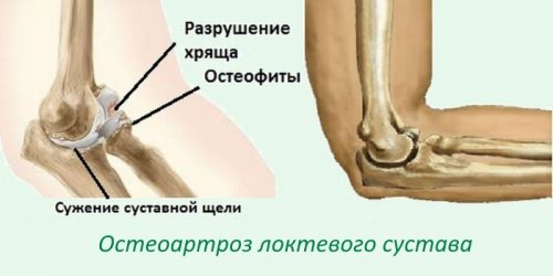 Проблема остеоартроза локтевого сустава