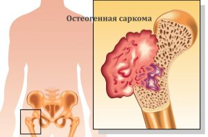 Остеогенная саркома бедра