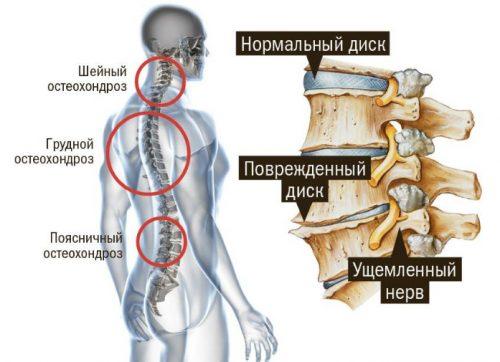 Распространение остеохондроза