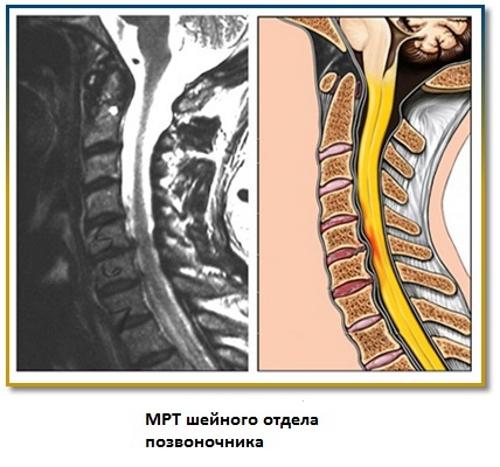 Остеохондроз на МРТ