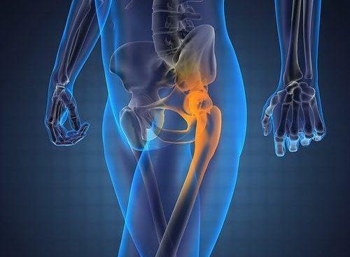 Возникновение остеохондроза тазобедренного сустава
