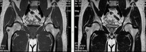 Остеоид–остеома на МРТ