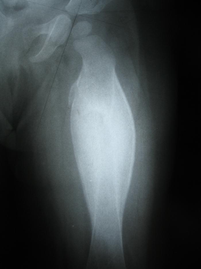 Рентген диагностика остеомиелита Гарре