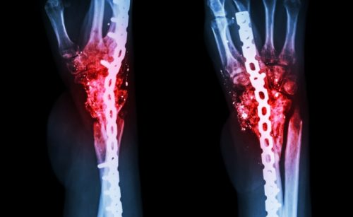 Остеомиелит кости