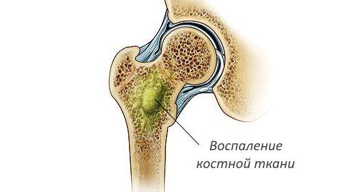 Остеомиелит внутри кости