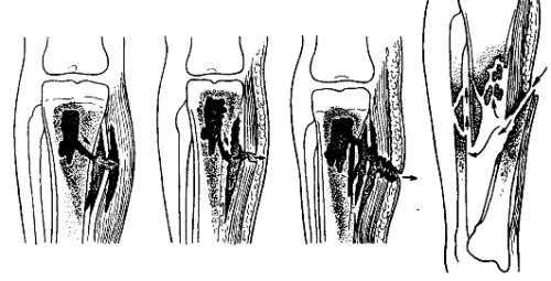 Остеомиелит на фоне травмы