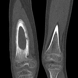 Остеомиелит на МРТ снимке