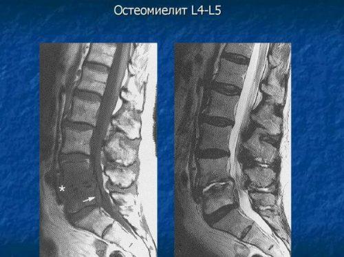 Диагностика остеомиелита на КТ