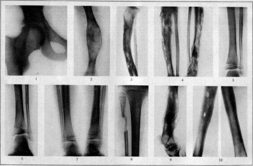 Остеомиелит на рентген снимке