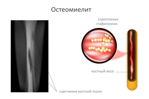 Поражение кости бактериями