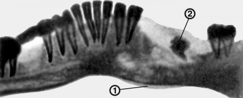 Остеомилеит челюсти на рентген снимке