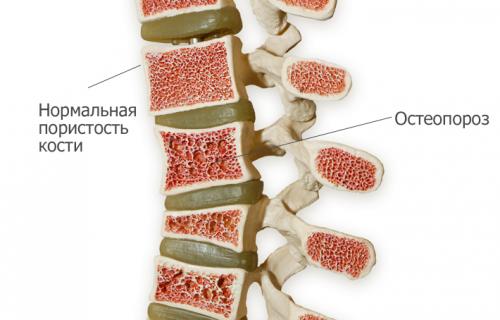 Равномерное расположение остеопороза