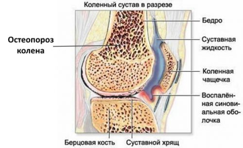 Изменения при остеопорозе коленного сустава
