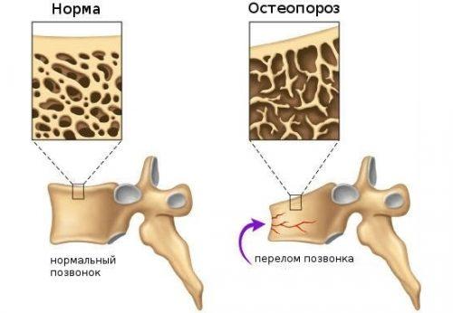 Остеопороз на фоне травмы
