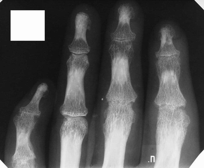 Остеопороз на рентгене