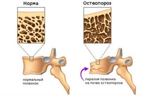 Перелом кости на почве остеопороза