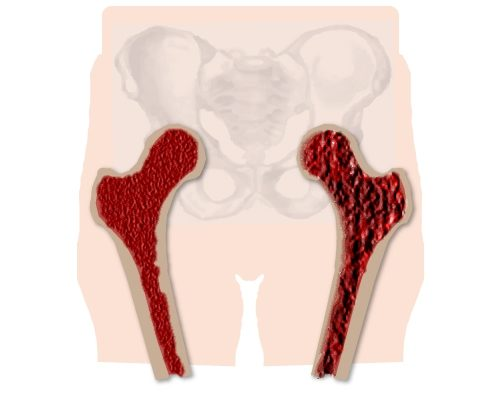 Разрушение кости при остеопорозе тазобедренного сустава
