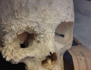Остеосаркома черепа