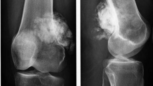 Остеосаркома на рентген снимке