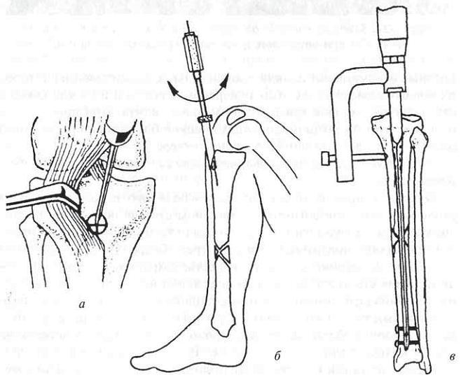 Остеосинтез большеберцовой кости