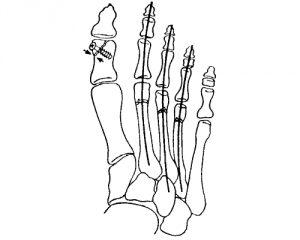 Остеосинтез большого пальца