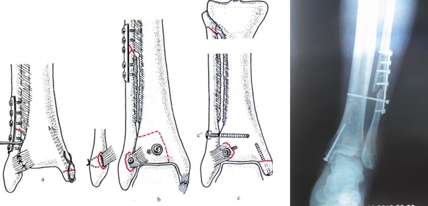 Остеосинтез малоберцовой кости