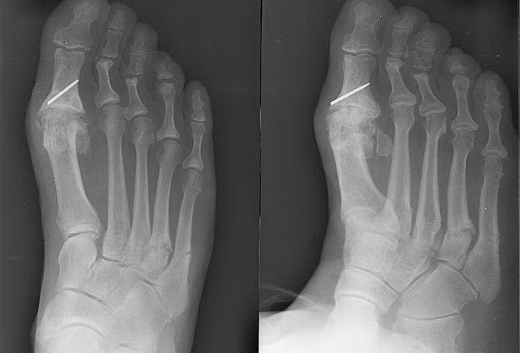 Остеосинтез пальца ноги