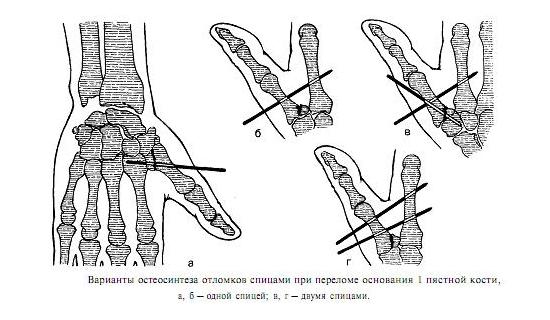 Остеосинтез пальца руки