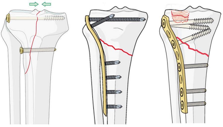 Остеосинтез при переломе колена