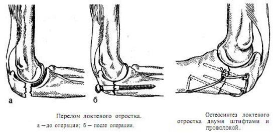 Остеосинтез при переломе локтевого отростка